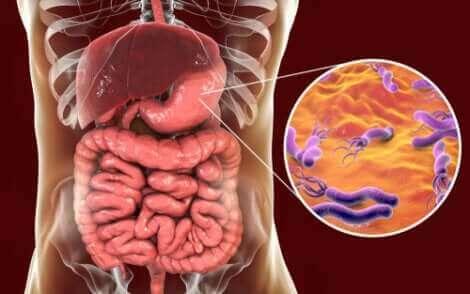 Les bactéries dans l'estomac.
