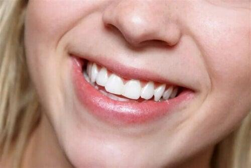 Les dents blanches sont des dents saines.