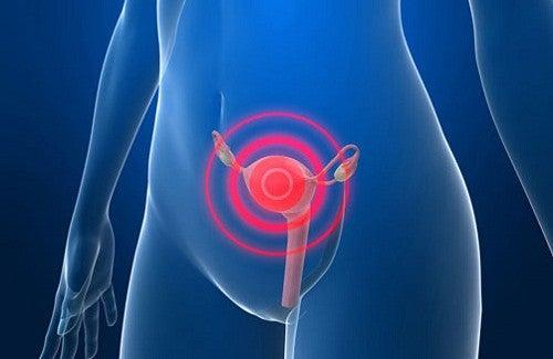 Cancer du col de l'utérus.