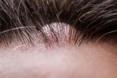 Qu'est-ce qu'un dermatofibrome ?