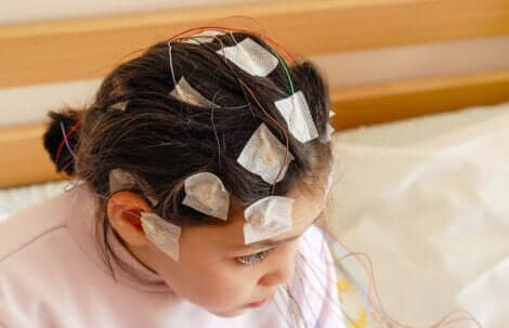 Il existe divers traitements visant à faire face à l'épilepsie infantile.