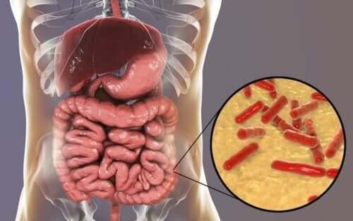 Quels sont les signes d'une flore intestinale altérée ?