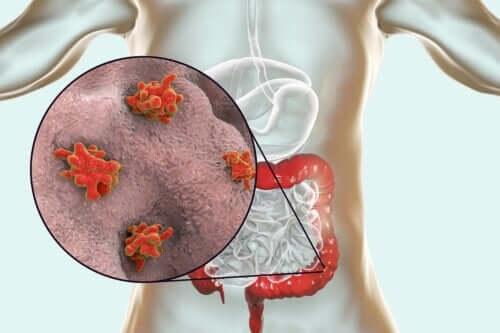Maladies causées par des protozoaires