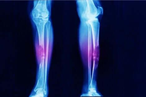Radiographie des membres inférieurs.