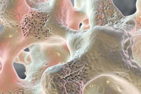 Le manque de calcium schématisé dans les os.