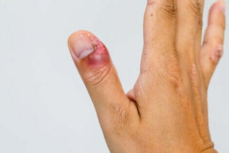 Le paronychia au doigt.