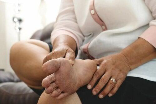 Le pied diabétique est l'une des complications du diabète. Pendant l'été, les risques d'ulcères et de blessures augmentent.