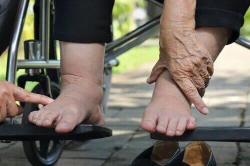 Conseils pour prendre soin de votre pied diabétique pendant l'été