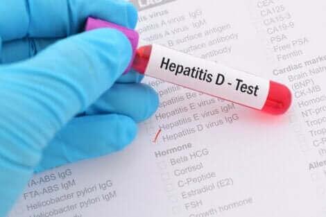 Les hépatites virales peuvent être diagnostiquées grâce à des analyses.