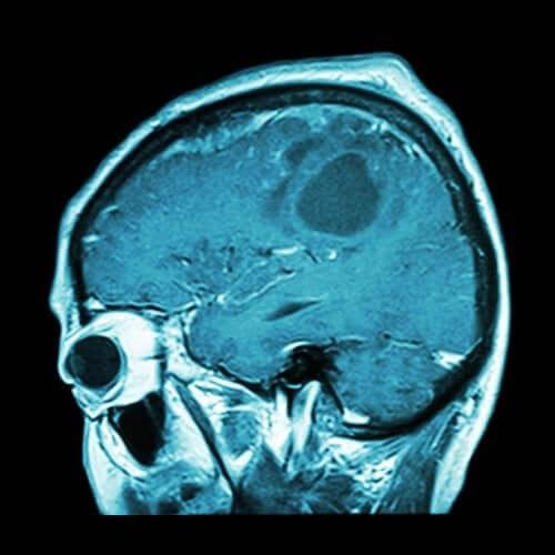 Bientôt un vaccin contre le cancer du cerveau ?
