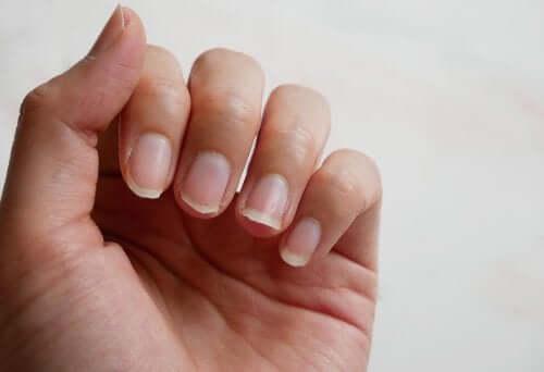 5 conseils pour renforcer vos ongles naturellement