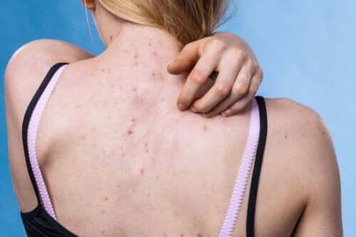 Conseils pour prévenir les maladies de peau