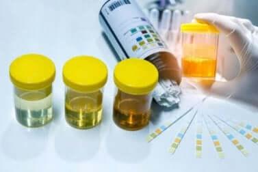 Analyse d'urine.