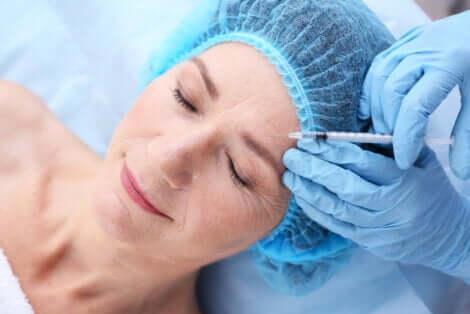 Injection d'acide hyaluronique sur le visage d'une femme.