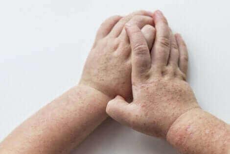 Des mains d'enfant touchées par la scarlatine.