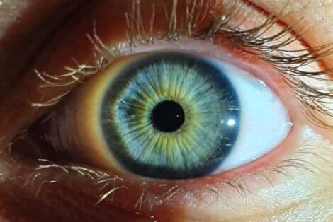Myosis dans un oeil.