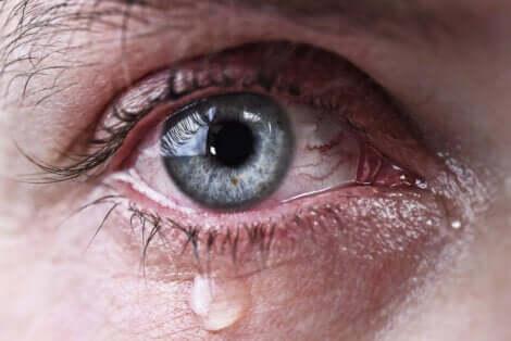 Un œil larmoyant.
