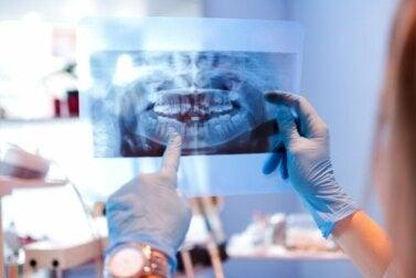 Mâchoire disloquée : causes et traitement
