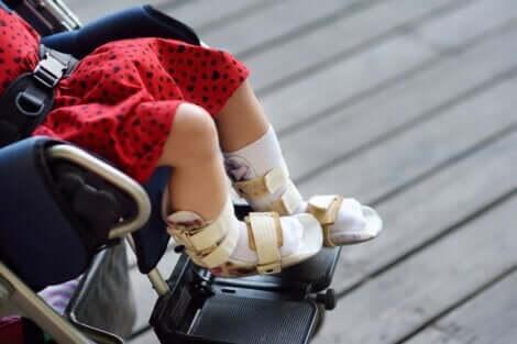 La paralysie cérébrale chez une petite fille.