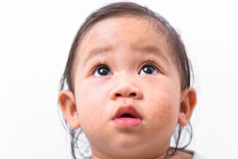Un enfant qui a une maladie de peau.