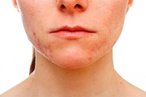 L'acné conglobata laisse des cicatrices qui minent la confiance en eux des victimes.