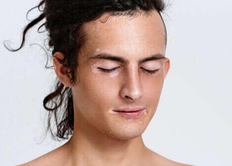 Un homme ayant du vitiligo.
