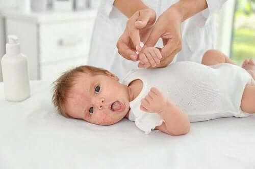 Acné du bébé : causes et traitements
