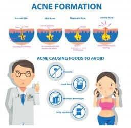 Graphique d'explication de la formation de l'acné.