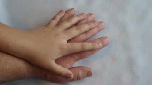Acromégalie : qu'est-ce que c'est et quels sont ses symptômes ?