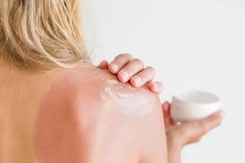 Pour éviter les coups de soleil, pensez à mettre de la crème.
