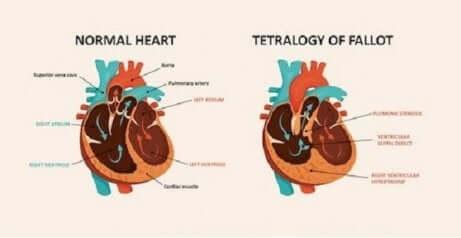 Schéma du coeur dans la tétralogie de Fallot.