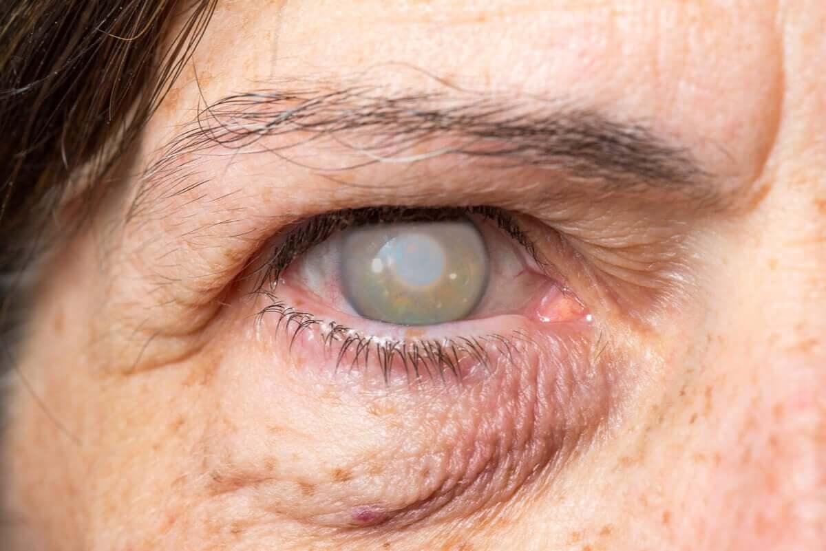 Une femme atteinte de cataracte.