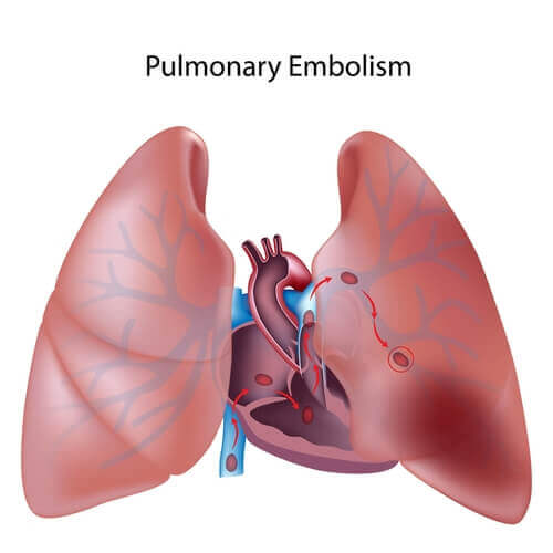 Tout ce que vous devez savoir sur l'embolie pulmonaire