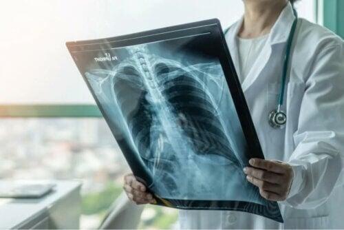 La tuberculose pulmonaire.