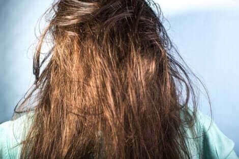 Une femme avec les cheveux gras.