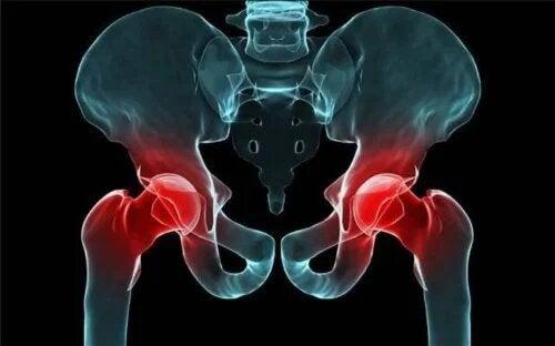 La luxation congénitale de la hanche peut créer une gène pour marcher.