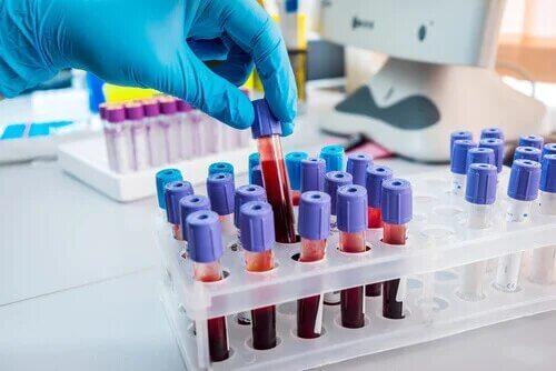 Les patients neutropéniques sont détectés grâce à des analyses sanguines