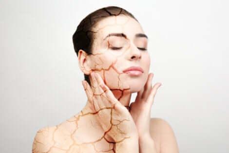 Une femme avec la peau sèche.