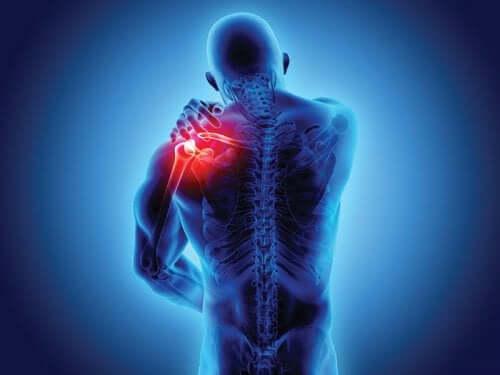 Spondylarthropathies : symptômes et diagnostic