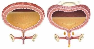 Traitement de la rétention urinaire postopératoire