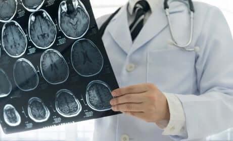 Radiographies d'un crâne.