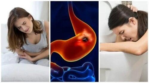 L'ulcère peptique est un ulcère dans la région de l'estomac.