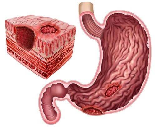 Ulcère peptique et Helicobacter pylori
