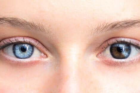 Des yeux de couleur différente.