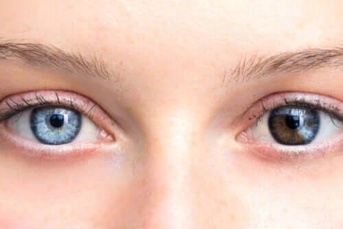 Changements de la couleur des yeux, est-ce inquiétant ?