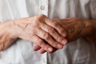 Arthrite dans les mains.