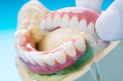Bridge dentaire : types, bénéfices et inconvénients