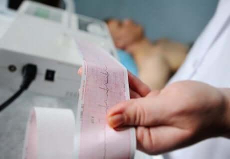 Un électrocardiogramme dans les mains d'un médecin.