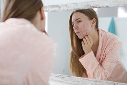Acné hormonale : causes et traitements