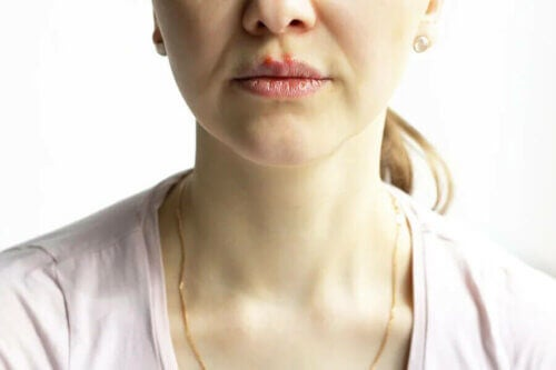 Une femme atteinte de pemphigus vulgaire.